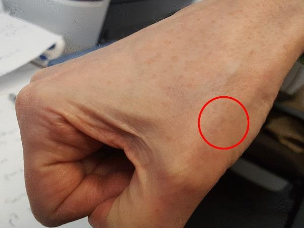 scar circled pic